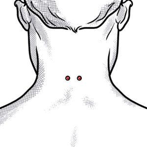 Nacken Implantate